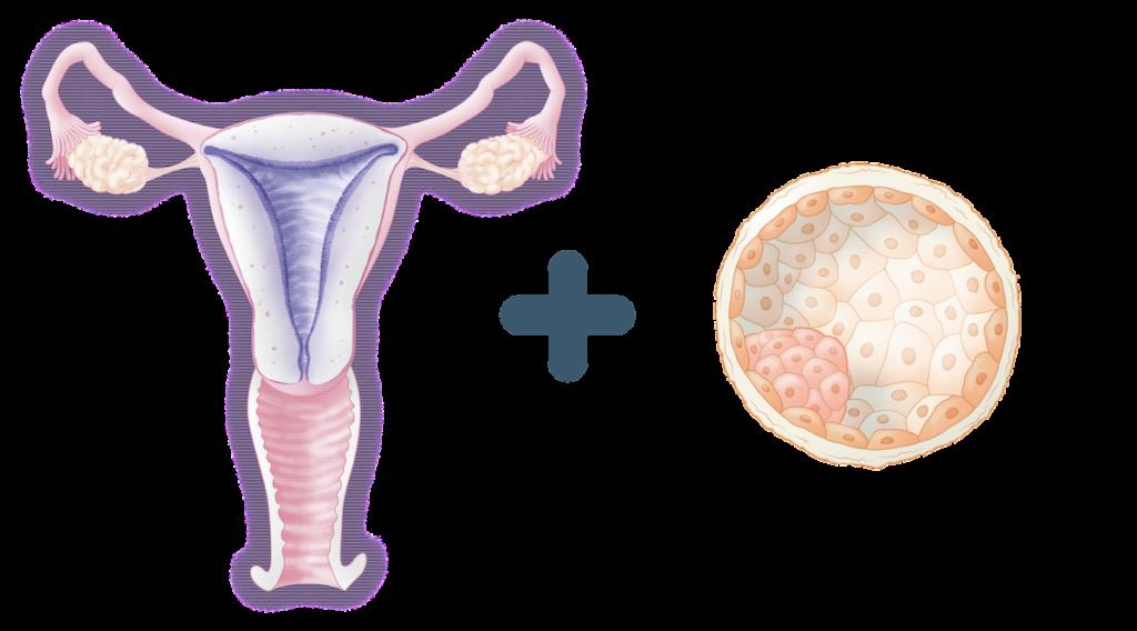 ERA análisis receptividad endometrial
